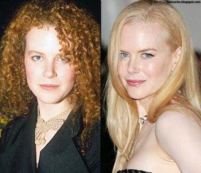 40 yaşında olmasına rağmen hala dünyanın en güzel kadınları arasında yer alan Nicole Kidman, 15 yıl önce yine öyle miydi dersiniz?
